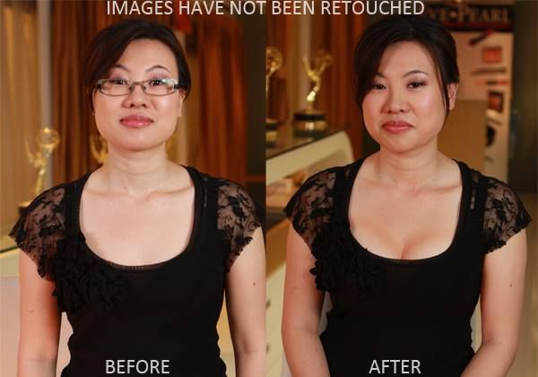 breast actives before and after photo