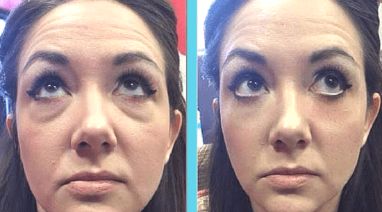 Instantly Ageless before after photo