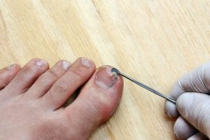 common nail problems