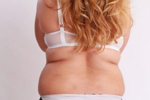 Woman with overweight problem