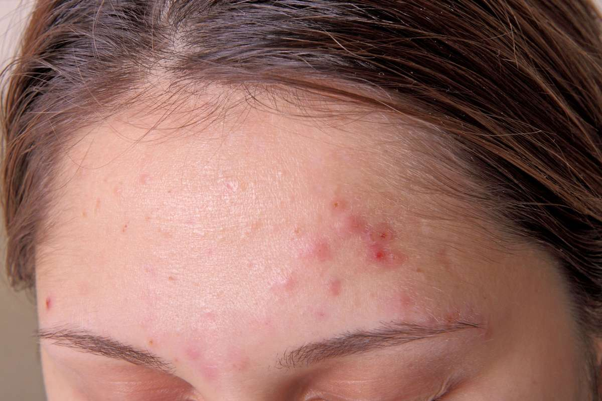 how does Zenmed Acne Therapy work