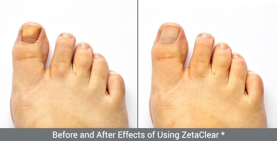Zetaclear before and after