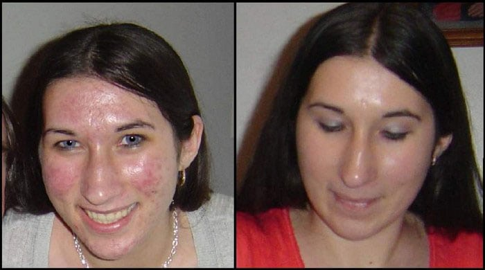 Body Merry Cream Before After