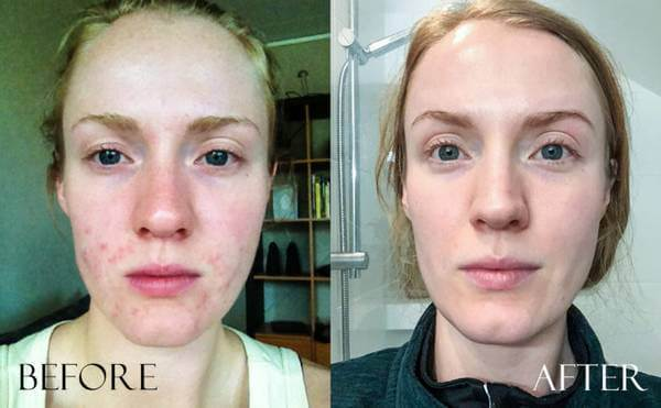 exposed skin care before after photo