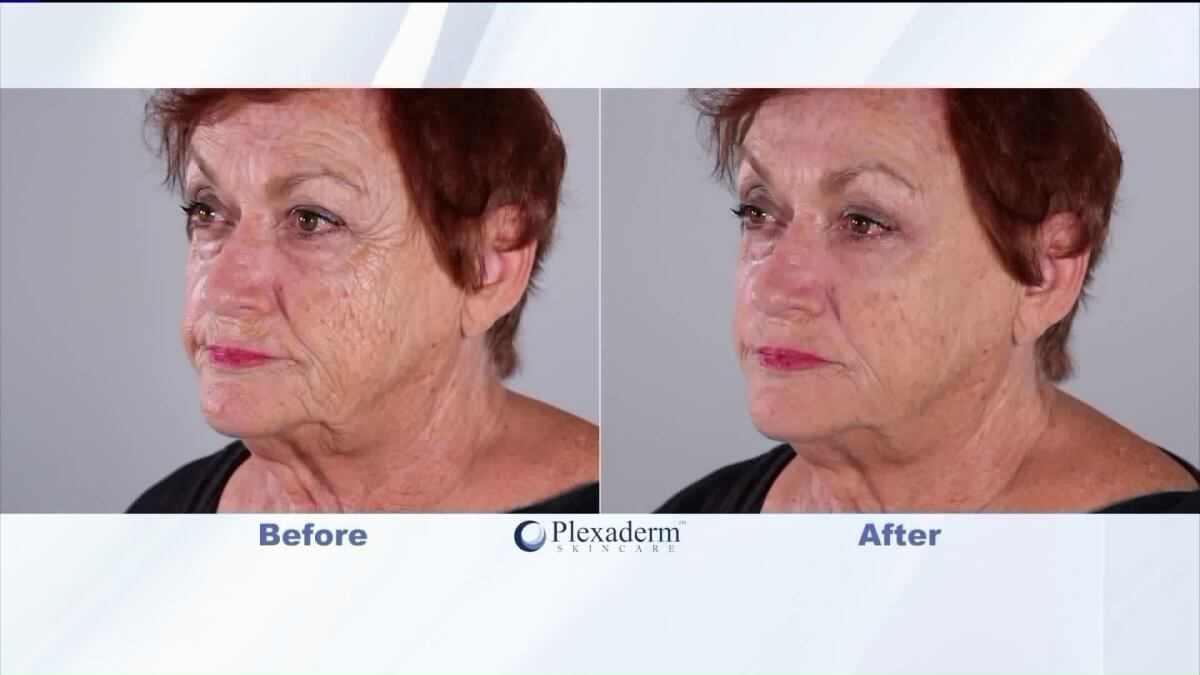 plexaderm reviews: before after