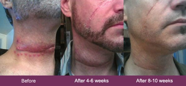 mederma before and after pic